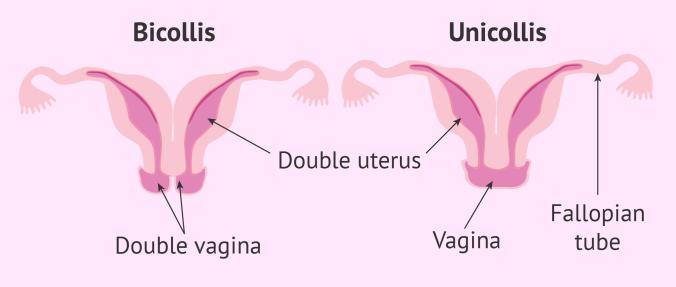 uterus 9