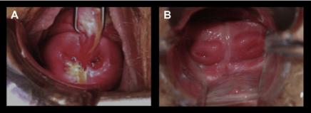 uterus1